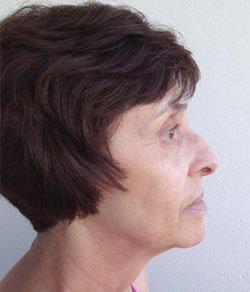 Facelift - necklift 3