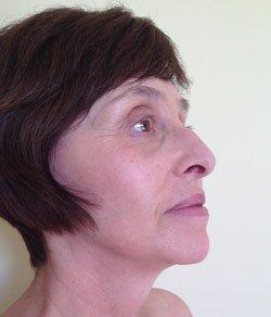 Facelift - necklift 6