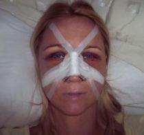 Čtvrtý den po operaci - ráno
