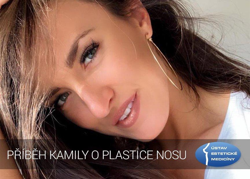 plastika nosu zkušenosti
