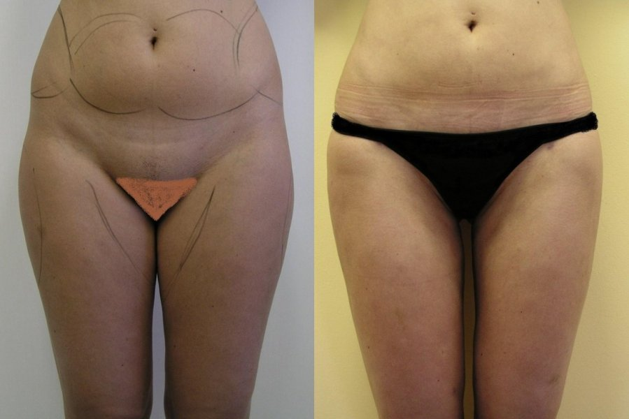 As layout before surgery are seen parts,where will do liposuction, after 3 months is good to see reduction of the fat, continuous lines of the hips and thighs are natural
