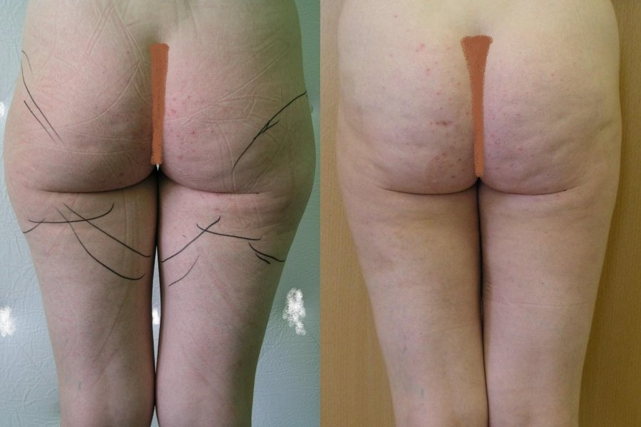 Good effect after 1 month after liposuction of inner and outer thighs