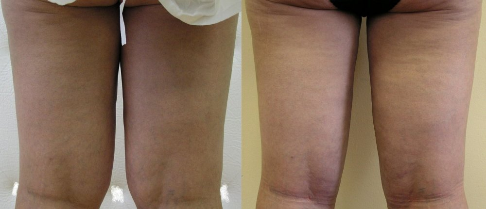 The problem with persistent fat pillow inside parts of knees and thighs,patient in middle age, 3 weeks after liposuction natural and good effect