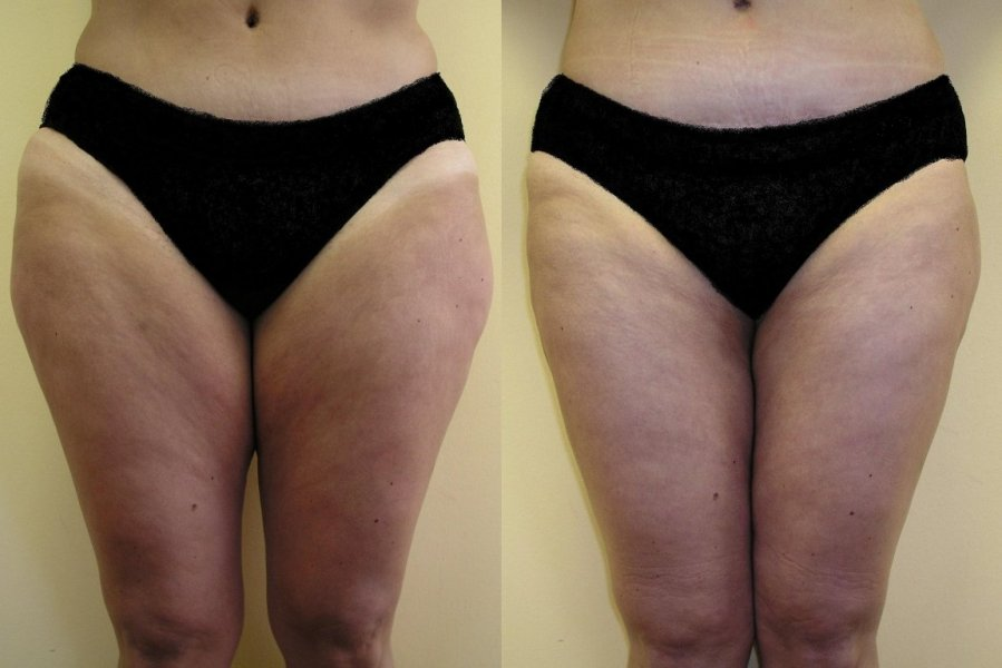 Liposuction of smaller fat pillows on inner and outer thighs, after 6 weeks is good and natural effect