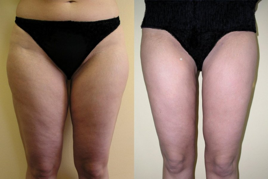 Large hip fat pads upper part of thighs, good visible reduction of volume 1 month after liposuction