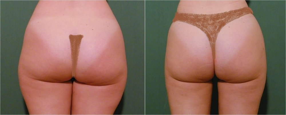 Good reduction of volume from upper part of thighs after 3 months after liposuction