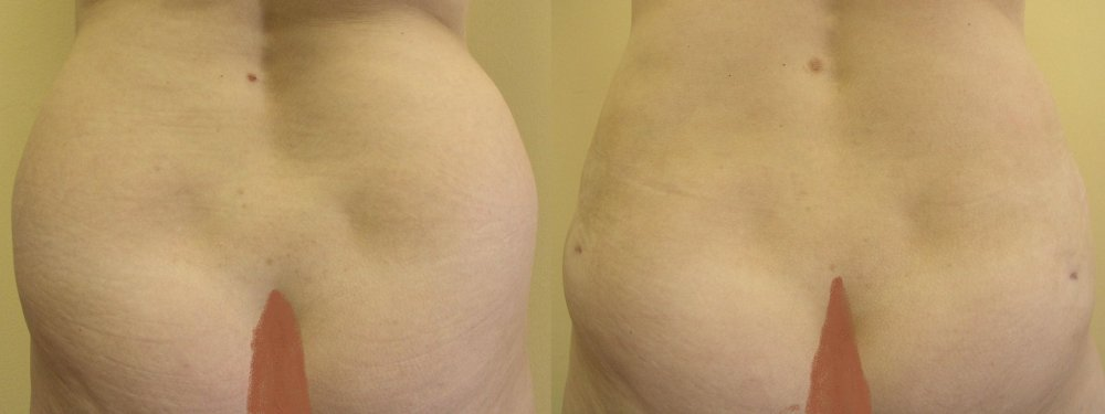 Large hip fat pads, 2 months after liposuction visible reduction,inequalities skin and swelling in lower parts will be better after next 1-2 months