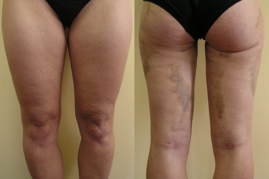 Liposuction of upper parts of thigs – after 2 weeks is good effect on inner and outer thigs, bruises will be still about 2-3 weeks