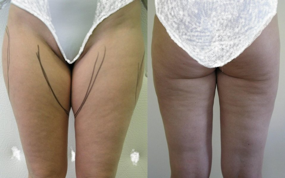 The plane before surgery shows places for liposuction, good effect after 3 months, small wawes of skin before liposuction to stay little also after