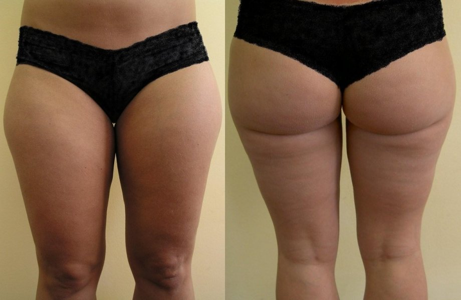 4 months after liposuction bigger layer of fat from upper part of thig, we must be careful, because we can