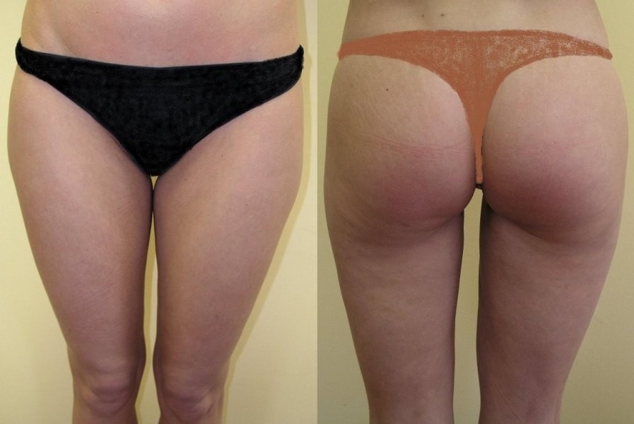 Large hip fat pads upper part of thighs, good and natural effect 2 months after surgery