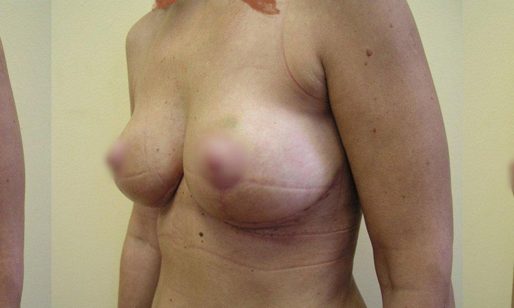 Меньшие разрешается груди 1 и 4 месяца после укрепления и моделирования желез постепенно исчезающие шрамы.