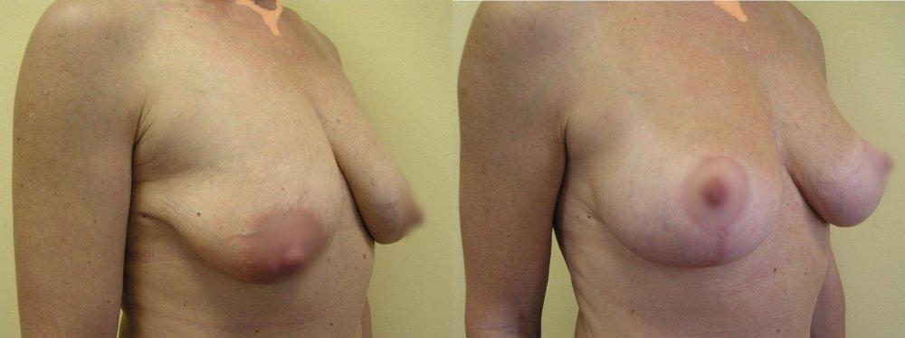 Меньшие подвесной груди - 1 и 3 месяца после моделирования, показывает постепенной стабилизации рубцы и формы груди.
