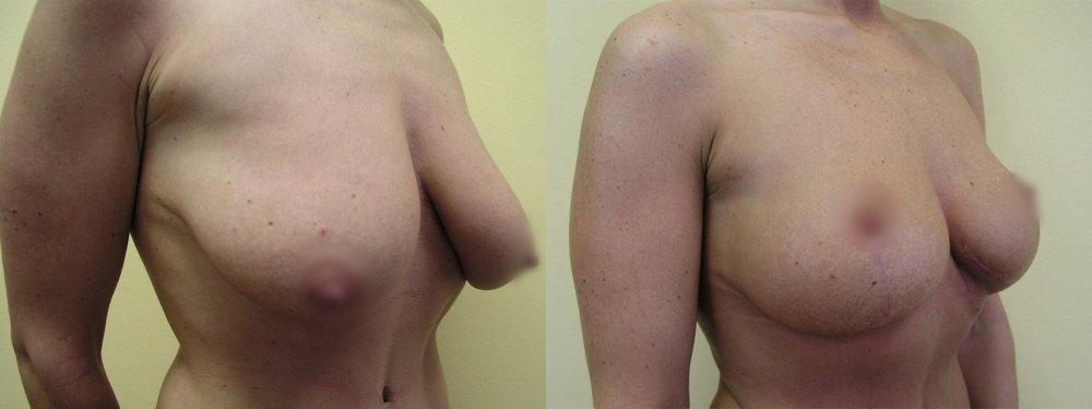 Меньшие разрешено груди после моделирования, показывает развитие рубцов и стабилизировать форму груди после 10 и 20 дней после операции и через 3 и 6 месяцев.