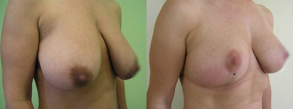 Небольшой грудью после реконструкции и укрепляющий 6 недель после операции.