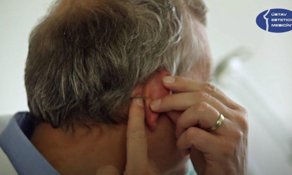 Pooperační péče po operaci obličeje